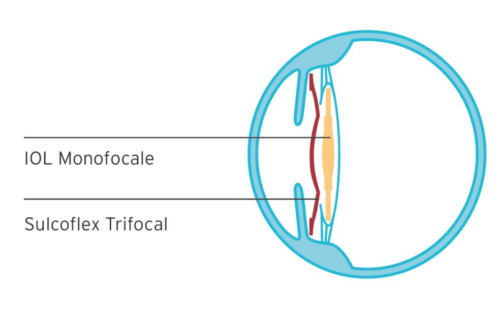 Sulcoflex Trifocal® Rayner